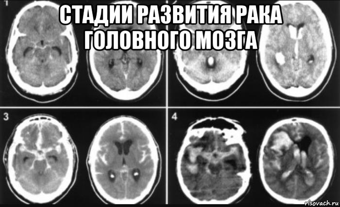 Виды опухоли головного мозга